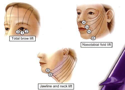 線雕拉提上臉中臉下臉治療部位-極緻診所.jpg
