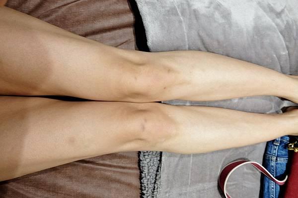 皮秒雷射膝蓋淡疤_201121_10.jpg