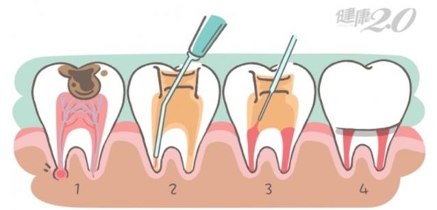 圖片取自健康2.0:醫:根管治療可保住牙齒
