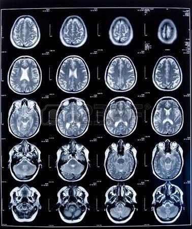 2815616-健康医療脳を示す頭部の-mri-像.jpg