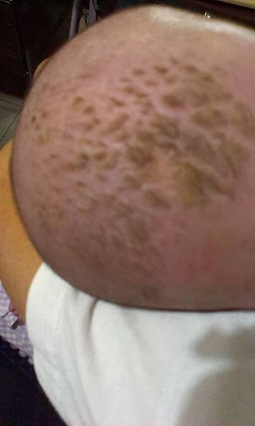 脂漏性皮膚炎2