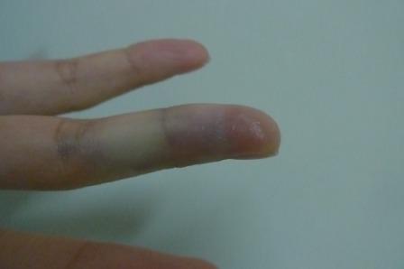 9手指瘀青.JPG
