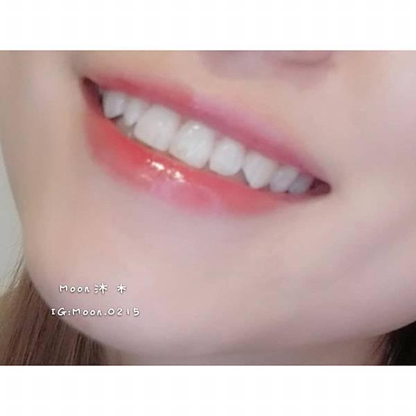 二極體美齒 日光翡麗牙醫診所16.jpg
