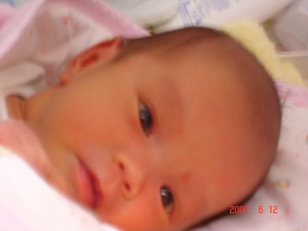 出生15天