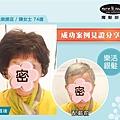 樂活銀髮_榮總店陳女士74歲_01