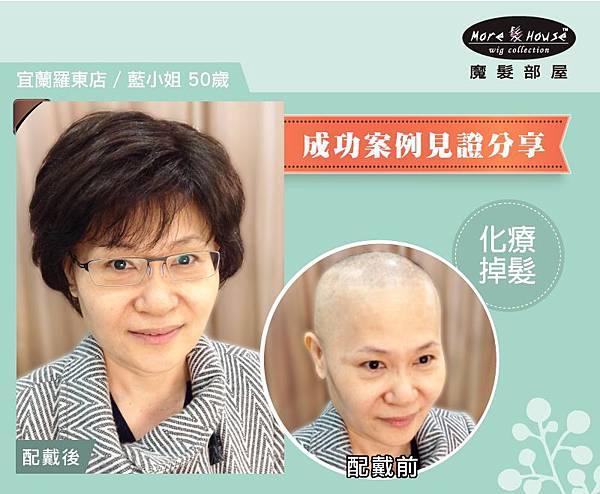 化療掉髮_羅東店藍小姐50歲_01