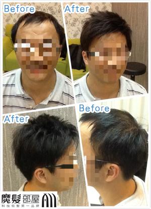 魔髮部屋科技假髮成功案例