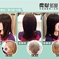化療掉髮醫療假髮2