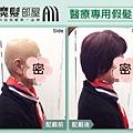 化療掉髮 醫療假髮2