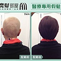 化療掉髮 醫療假髮3