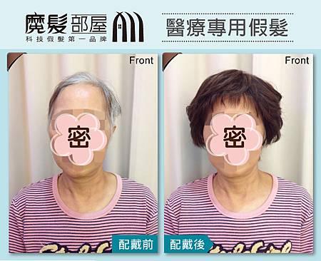 樂活銀髮_醫療假髮1