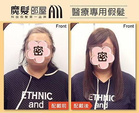 醫療假髮1.jpg