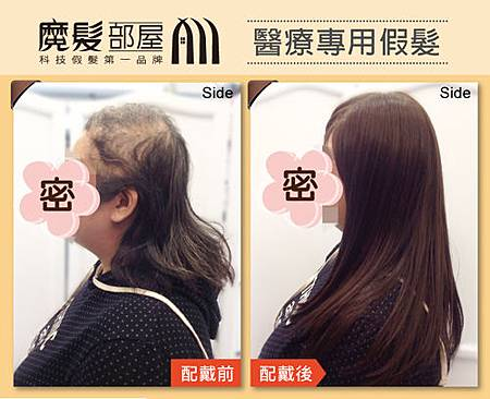 醫療假髮2.jpg
