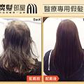 醫療假髮3.jpg