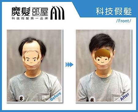 科技假髮1
