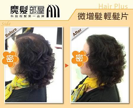 局部增髮片2