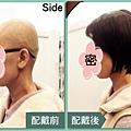 醫療假髮2