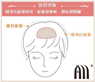 微增髮 髮片 (2)