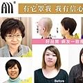 抗菌醫療假髮 化療專用3