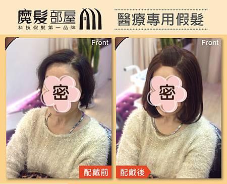 醫療假髮 (1)
