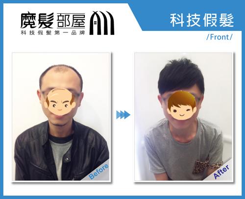 科技假髮髮片彰化員林 (1)