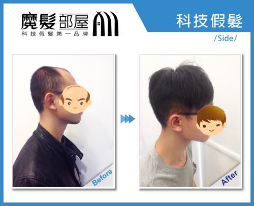 科技假髮髮片彰化員林 (2)
