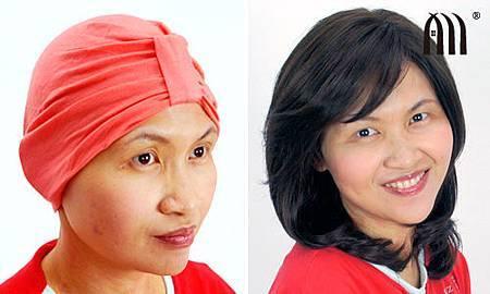 魔髮部屋醫療假髮康復輔具4