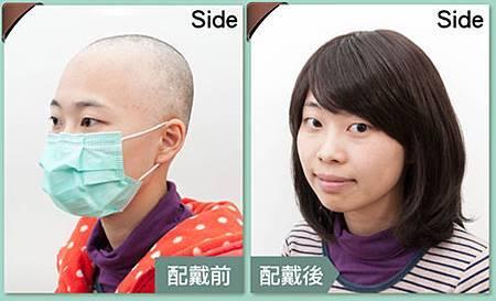 醫療假髮病友推薦2