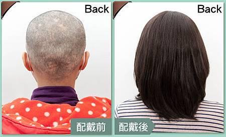 醫療假髮病友推薦3