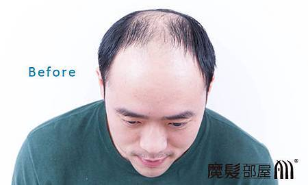 遺傳性掉髮1