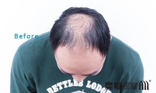 遺傳性掉髮2