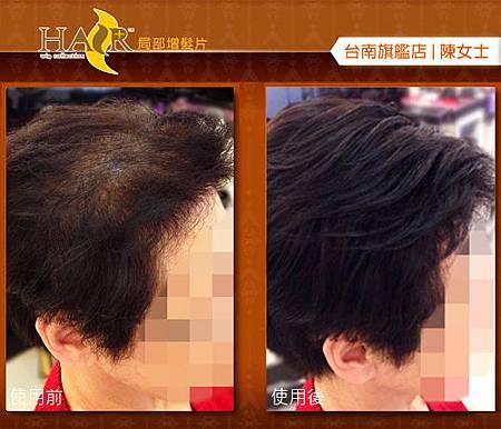 微增髮片2