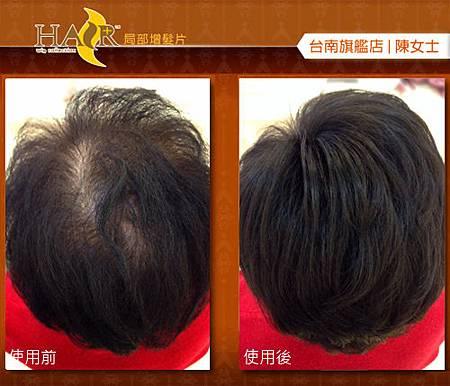 微增髮片3