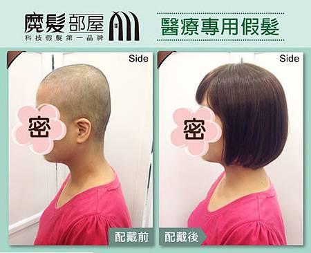 醫療假髮 (2)