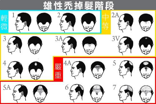 雄性禿掉髮階段