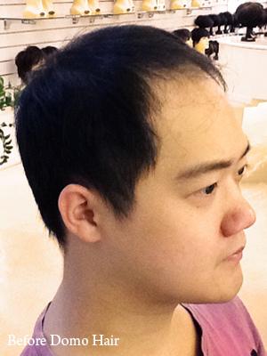 科技假髮使用前 (1)