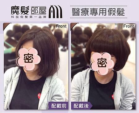 醫療假髮.jpg