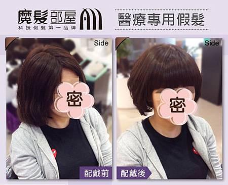 醫療假髮 (1).jpg