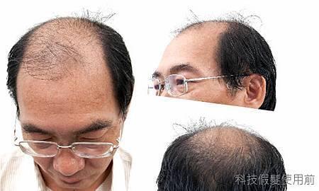 掉髮.jpg