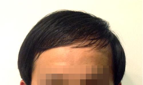 掉髮2.jpg