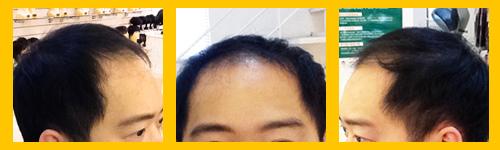 掉髮 (1).jpg