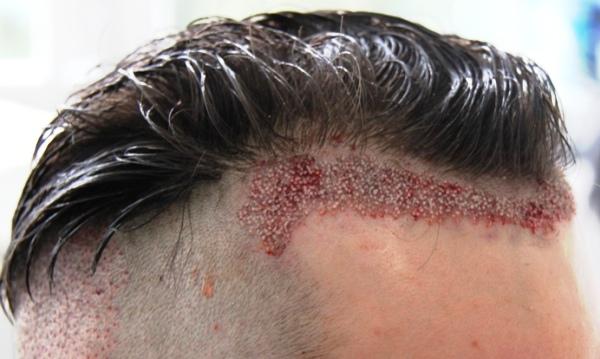 植髮手術.jpg