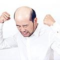 禿頭.jpg