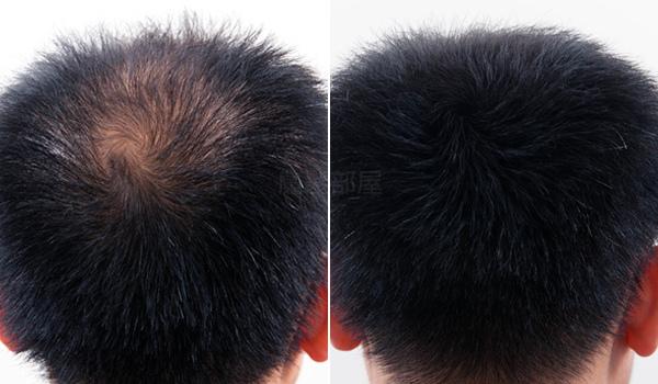 髮粉 (1).jpg