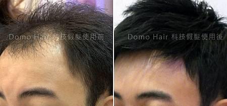 Domo Hair 科技假髮.jpg