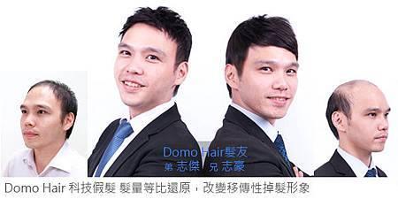 雙胞胎對抗遺傳性掉髮.jpg