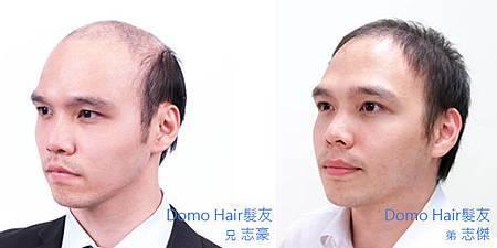雙胞胎頭型不同.jpg