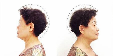 頭髮細少.jpg