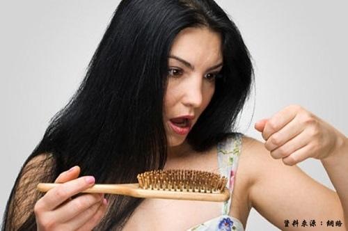 女性禿頭原因.jpg