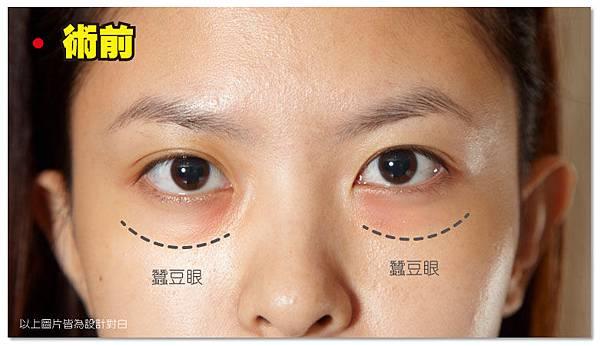 台中眼袋|台中眼袋手術02